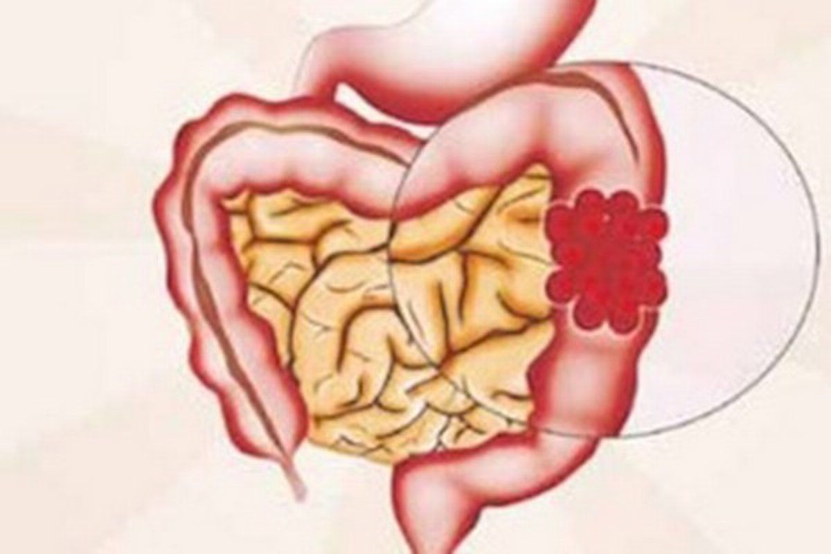 Rakovina hrubého čreva_Naturalhelp