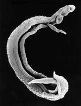 Schistosomóza - Motolica (Schistosoma haematobium)